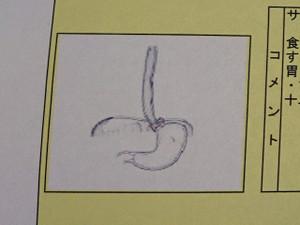 Gastroscope_171116_1