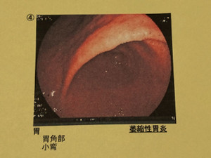 Gastroscope_171116_3